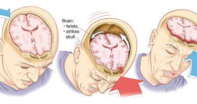 Что такое сотрясение мозга?