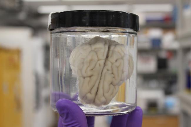 Ученые вернули мозги к жизни через четыре часа после смерти