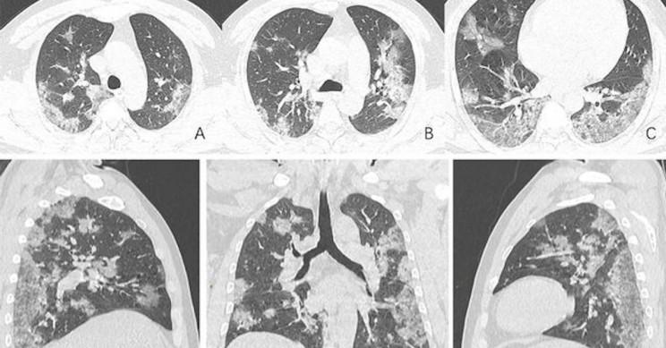 КТ и рентгеновские снимки показывают повреждение легких пациентов с COVID-19
