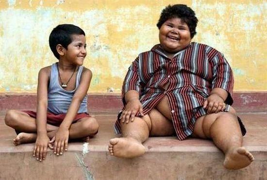 За 40 лет количество, страдающих ожирением выросло в 10 раз, но голодающих все еще много