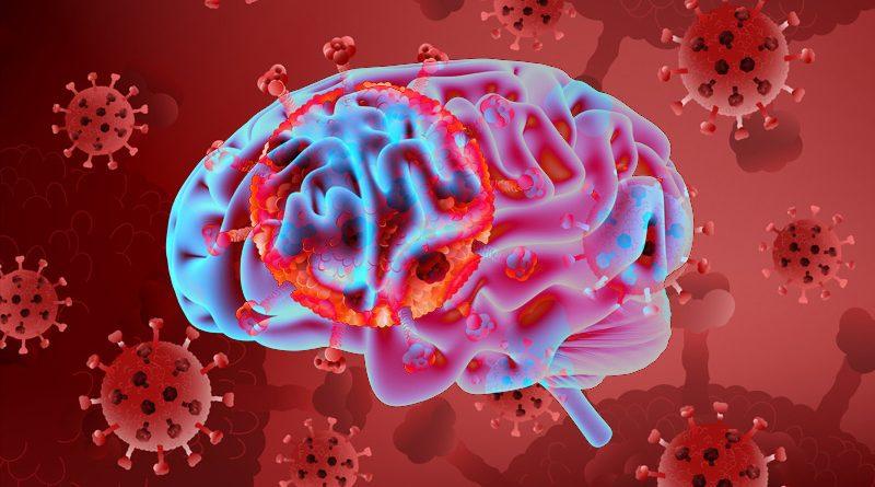 COVID-19 может повлиять на мозг и нервы тоже