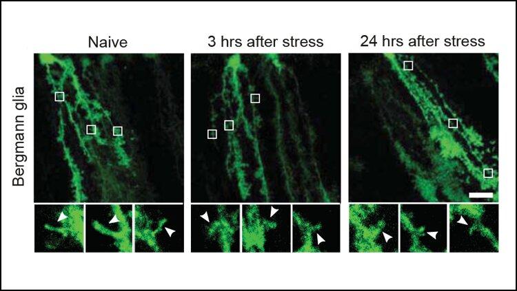 Исследования показывают, как стресс реконструирует мозг
