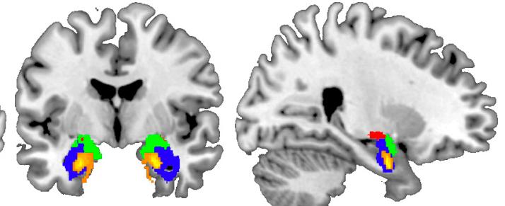 Ученые нашли область мозга, ответственную за доверие