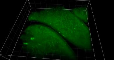Ученые наблюдают за нейронной активностью 10 тысяч клеток в 3D