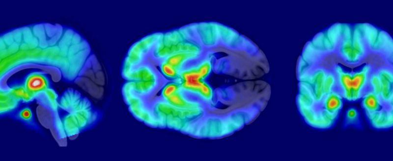 Возраст, пол и курение влияют на функцию опиоидных рецепторов в мозге