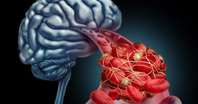 Умный мозг не только большой, но и жаждущий крови