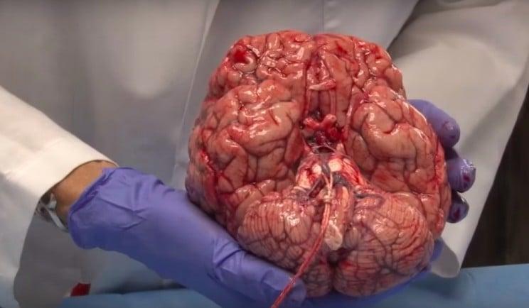 Посмотрите, как нейроанатом описывает человеческий мозг со свежим мозгом в руках