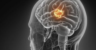 Сфокусированный ультразвук против самой смертельной опухоли головного мозга