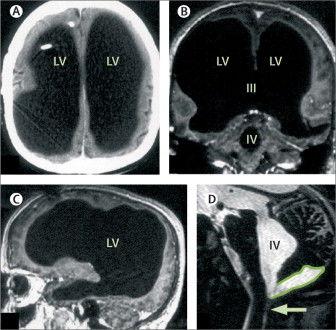 Сканирование показало, что желудочки мужчины настолько опухли, что заменили большую часть его мозга. The Lancet