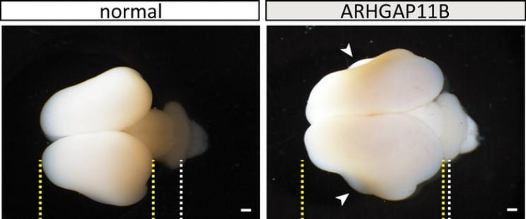 Ученые вырастили большие обезьяньи мозги, используя человеческий ген, копируя эволюцию