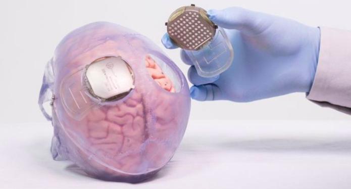 Два имплантата были установлены над сенсомоторной корой пациента