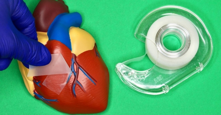 Сверхсильная хирургическая лента может использоваться на внутренних органах и удаляется за 5 минут