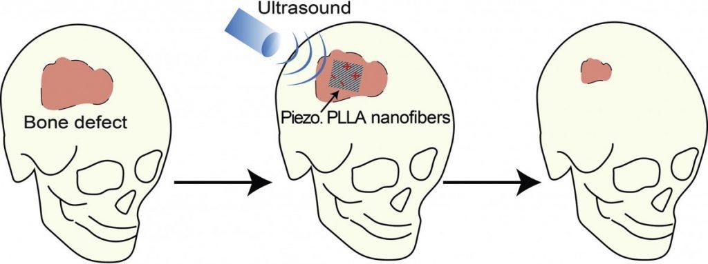 С волной ультразвуковой палочкой имплант начинает производить электричество, которое стимулирует рост костей. Изображение: Университет Коннектикута