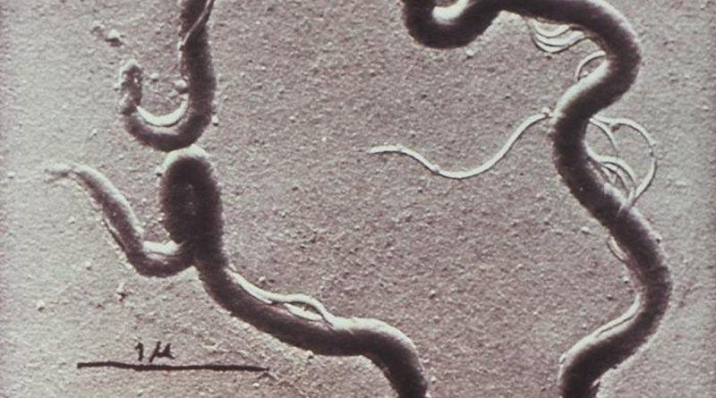возбудитель сифилиса Treponema pallidum