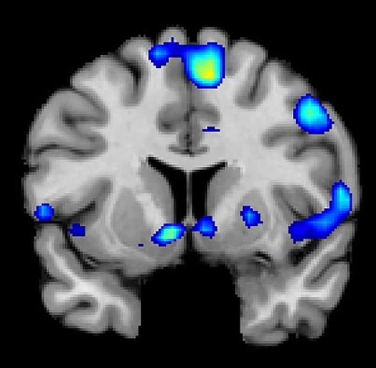 ФМРТ-сканирование демонстрирует регионы мозга, которые активизируются тогда, когда участники испытывают яркие духовные ощущения. По скану видно, что становится активным в том числе и центр награды в прилежащем ядре головного мозга. Image is credited to Jeffrey Anderson.